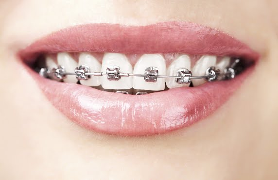 What Do Braces Do to Your Teeth?